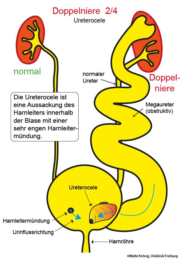Großartig Anatomie Einer Blase Bilder - Menschliche Anatomie Bilder ...